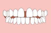 Cross bite with crowding